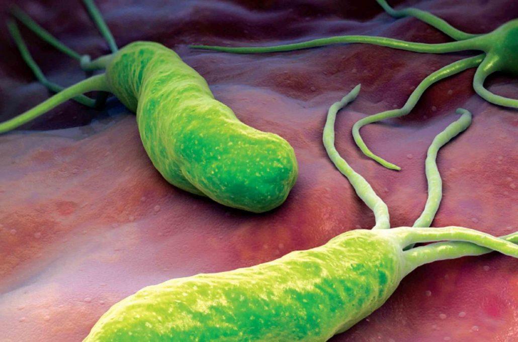 helicobacter pylori teszt kilégzési vizsgálattal